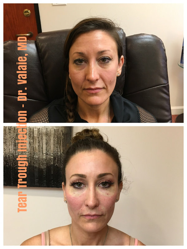 Bags Under Eyes (Tear Trough Fillers) by Dr  Valaie at Newport Beach